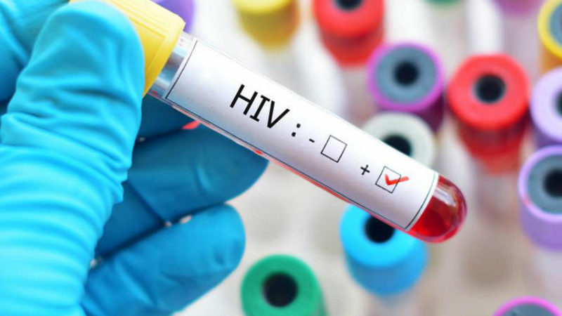 HIV functional cure
